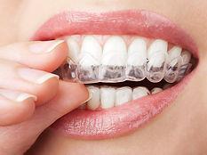 Odontologia estética, dsd, Dentistas Taubaté, Dentistas sjc, Dentistas tremembé, Dentistas vale do paraíba, dentistas são josé dos campos, reali reablitação oral