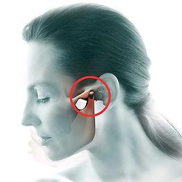Tratamento ATM - DTM - A-DTM - Taubaté, Tratamento ATM - DTM - A-DTM - vale do paraíba, Tratamento ATM - DTM - A-DTM - sjc, Tratamento ATM - DTM - A-DTM - tremembé, Dentistas Taubaté, Dentistas sjc, Dentistas tremembé, Dentistas vale do paraíba, dentistas são josé dos campos, reali reablitação oral