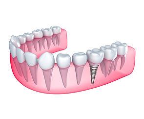 Implantes dentários Taubaté, Implantes dentários Tremembé, Implantes dentários sjc, Implantes dentários vale do paraíba, Implantes dentários são josé dos campos, Dentistas Taubaté, Dentistas sjc, Dentistas tremembé, Dentistas vale do paraíba, dentistas são josé dos campos, reali reablitação oral