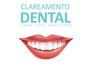 Saiba tudo sobre clareamento dental!