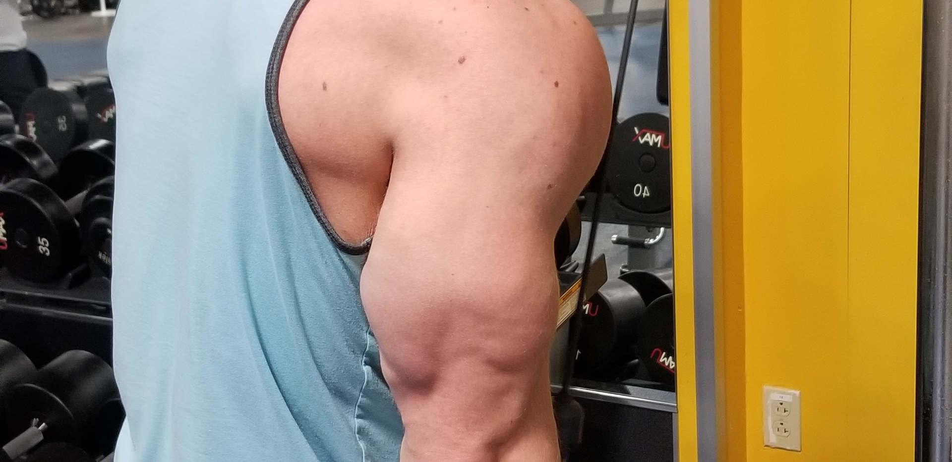 Ross Triceps.jpg