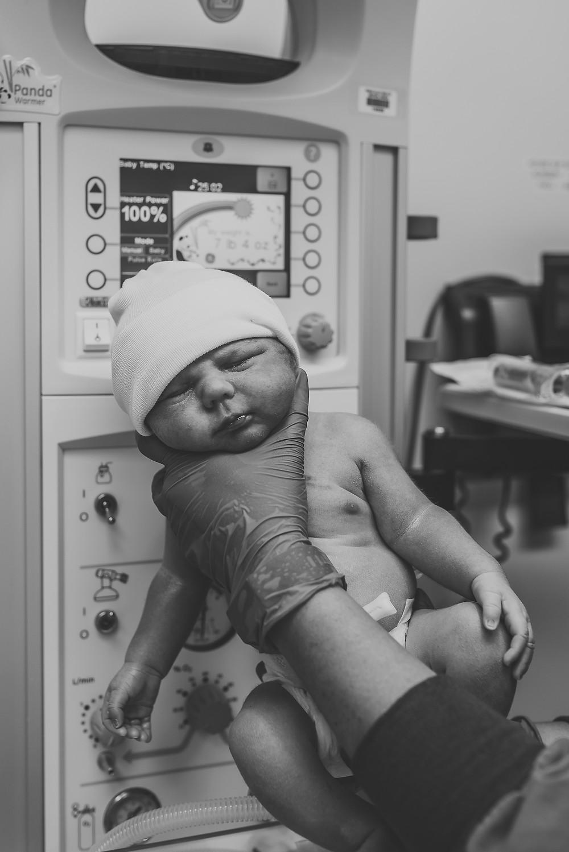 Birth photographer | Medford, Oregon | Asante Hospital | Caesarean Birth