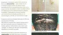 Cirurgia de calvície