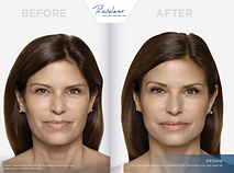restylane-before-after_m.png
