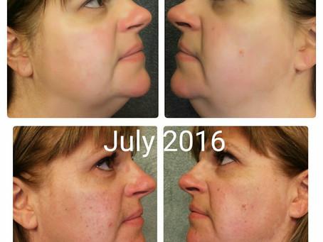 Visi Skin Care - Maria's Transformation