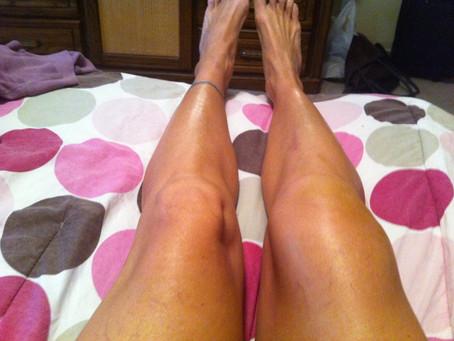 Kim's Knee Transformation
