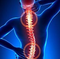 fisioterapia-para-hernia-de-disco_22768_