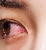 dry eyes.jpg