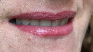 huulien kestopigmentointi.