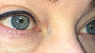 silmänrajaukset