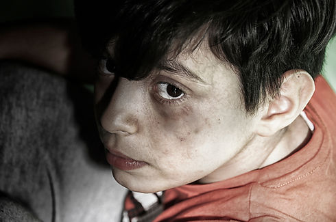 boy with bruises on face.jpg