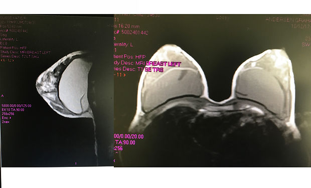 breastMRI.jpg