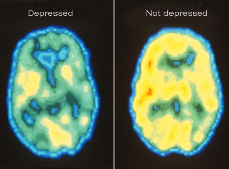 Overcoming Depression May Be Easier Than You Think