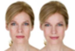 Photorajeunissement soins visage