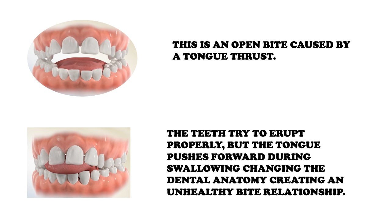 Tongue Thrusting Problem