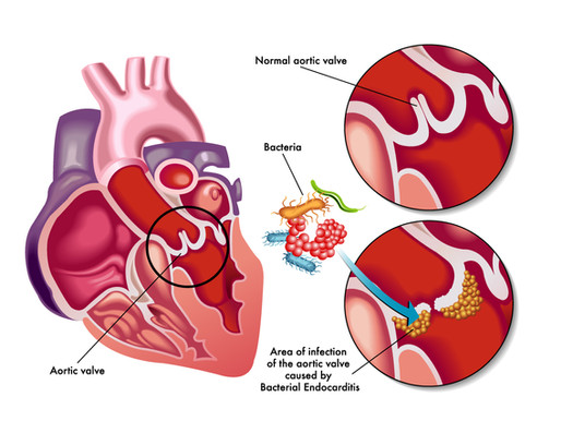 What you need to know about Infective Endocarditis