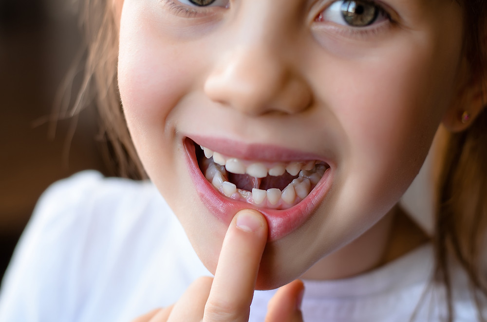 What is an ankylosed tooth?