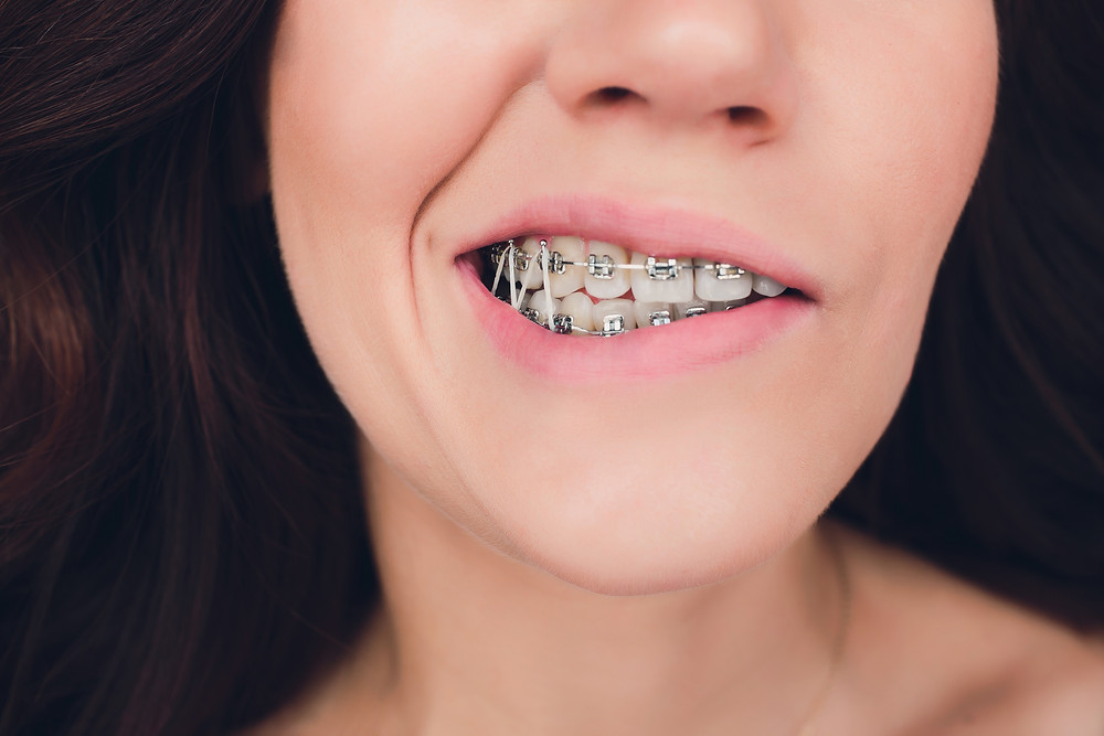 Answers To Common Questions About Orthodontics Part 2 All