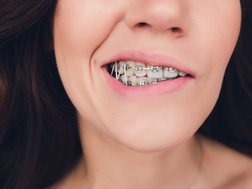 Answers to Common Questions About Orthodontics (Part 2) – All About the Rubber Bands