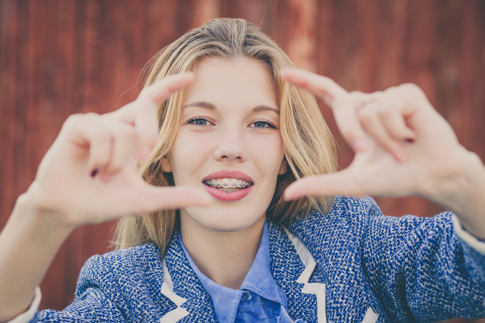 HOW DO BRACES WORK? WHY SHOULD I CARE?