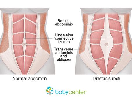 10 Myths about Diastasis Recti Debunked