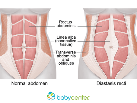 10 Myths about Diastasis Recti Debunked