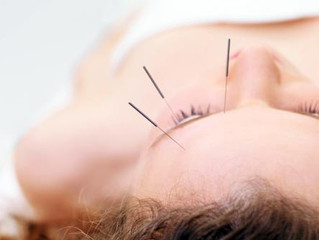 Treating Migraines with Acupuncture.