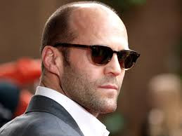 What are the causes and remedy for baldness in male?