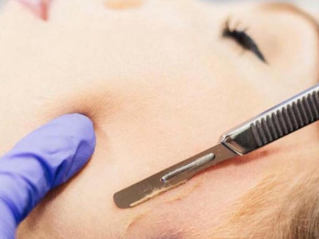 What Are the Benefits of Dermaplaning?