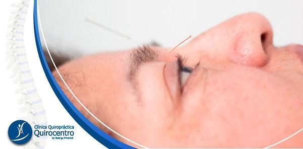 QUIROCENTRO-WEB-acupuntura-3.jpg