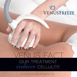 Venus Freeze 2.jpg