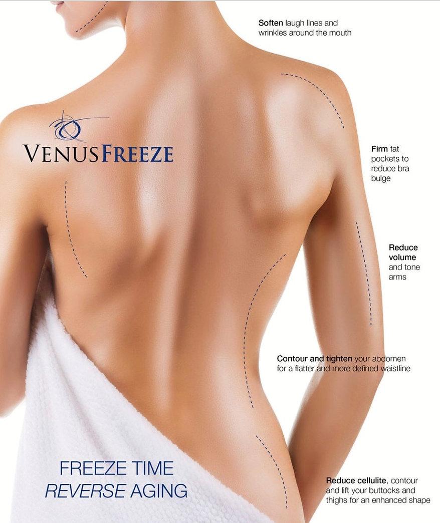 Venus Freeze 1.jpg