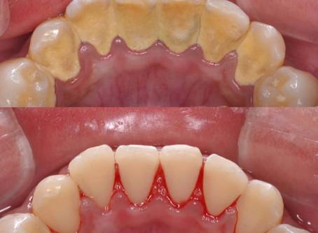 Common sense dental health plan