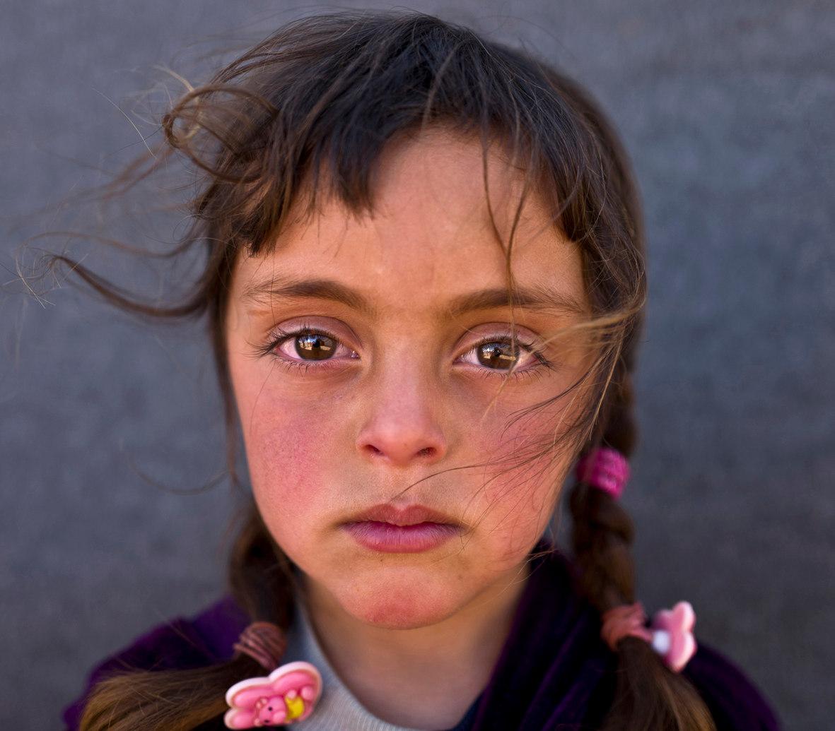 Zahra- Victims of War