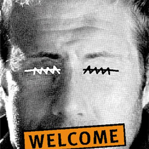 Welcome Xenofobia
