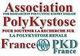 PKD France