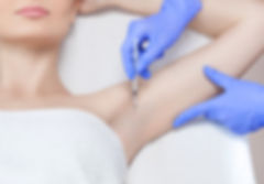 Botox injectins for excessive armpit sweating