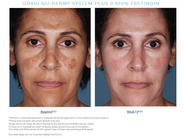 US_Nu_Derm_Tretinoin_Before_After_5.jpg