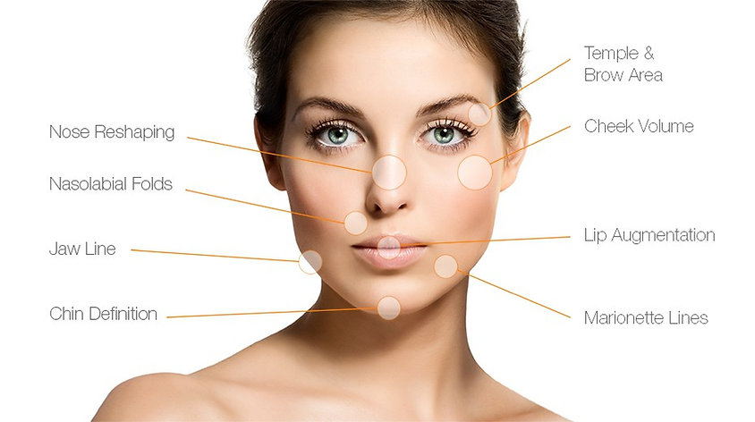 Areas on face that are suitable for dermal filler treatment