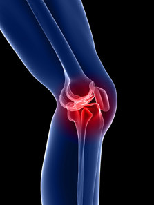 Knee Pain: Common Mistakes