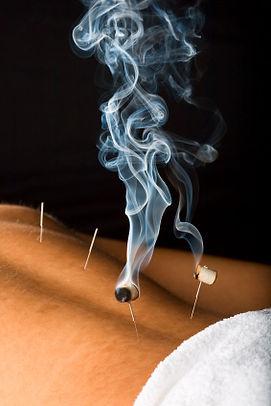 Acupuncture Preston   Penwortham   Leyland   Chorley