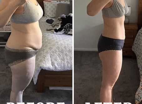 Resurge Weightloss Reviews - Is It Legit or a Scam?? WARNING Must Read This Before Buying..