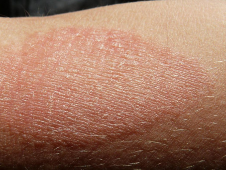 Are you looking for all natural itch relief for Eczema?