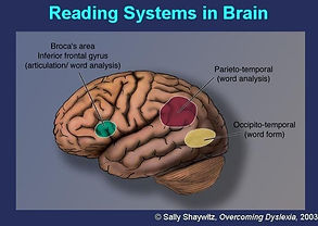 Brain%20Images_edited.jpg
