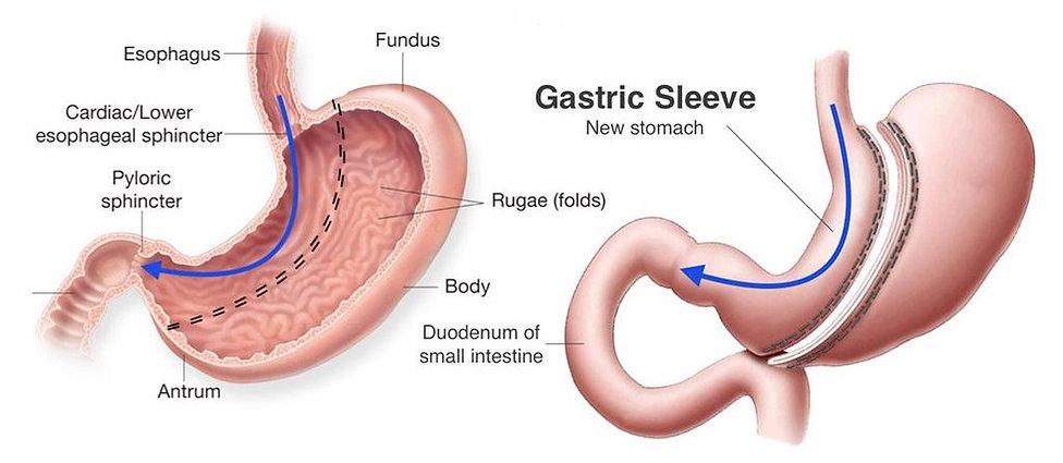 Sleeve gastrectomy Dr. Morr