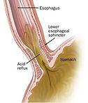 chirurgia reflusso gastroesofageo