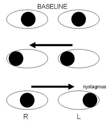 Internuclear_ophthalmoplegia.jpg