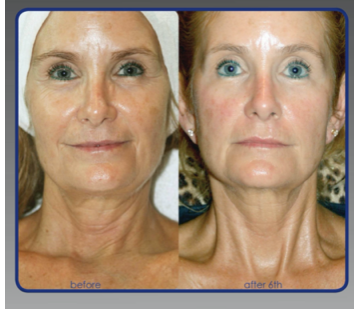 Circadia SWiCH™ Dermal System (series)