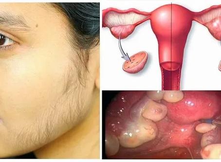 Calidad de vida en mujeres con Síndrome de Ovario Poliquístico