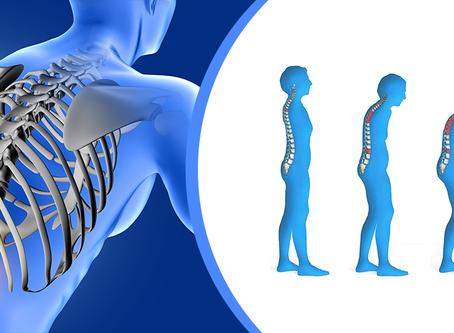 Osteoporosis ¿Por qué las mujeres tienen mayor riesgo?